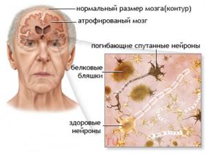 Безымянныйневролог